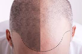 denver hair transplant